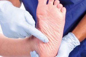 Implementarea serviciilor de podiatrie scade incidența primei ulcerații a piciorului diabetic