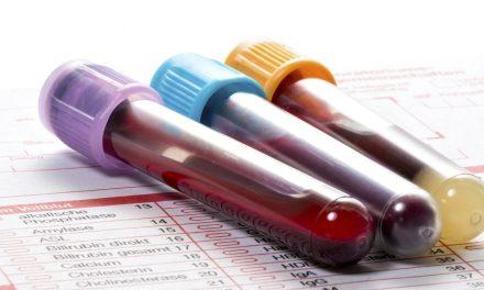 73% dintre cazurile de diabet pot fi omise dacă diagnosticul se bazează doar pe valorile hemoglobinei glicozilate