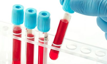 Diagnostic diabet: ce analize sunt necesare