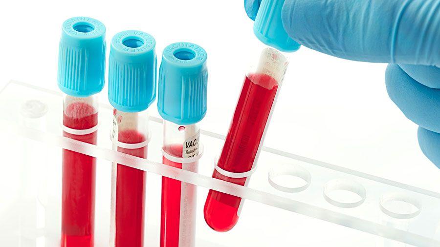 Analize utile pentru depistarea diabetului