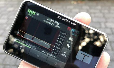 Control-IQ: noua tehnologie care ajuta la controlul diabetului de tip 1