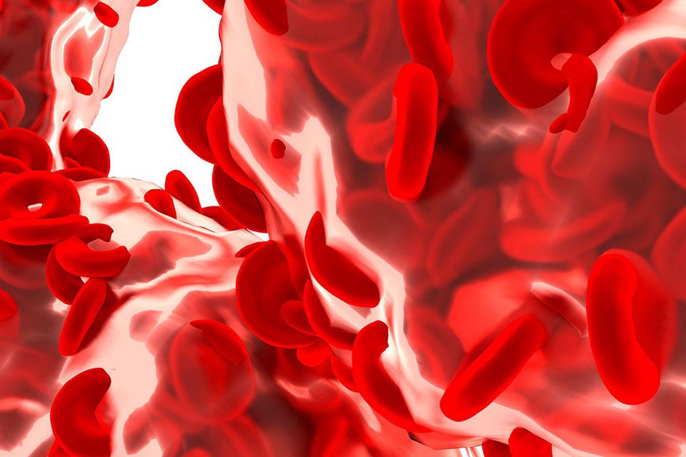 Hemoglobina glicozilata