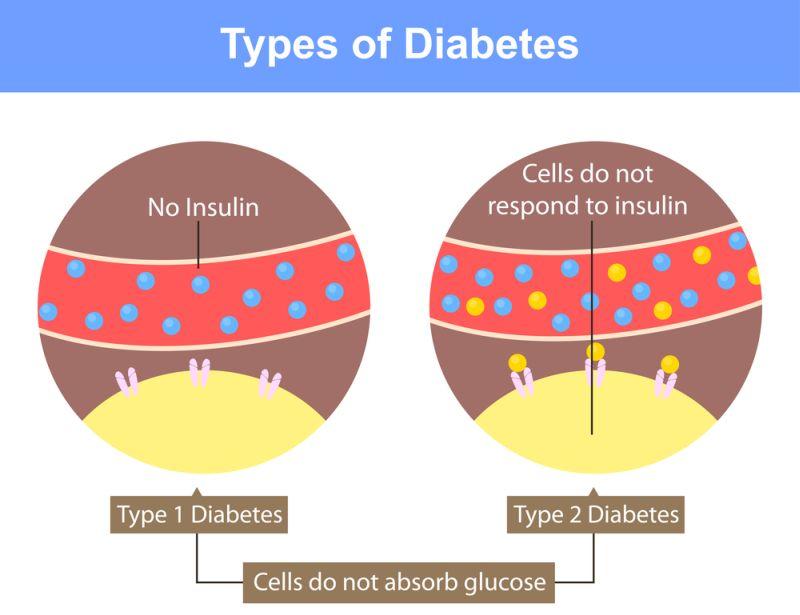 Diabetul de tip 1 se poate manifesta sub două forme diferite