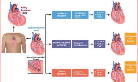 O nouă țintă terapeutică în cardiomiopatia diabetică. Metformin reduce acumulările lipidice cardiomiocitare la diabeticii cu transplant de cord de la donatori non-diabetici, independent de tratamentul imunosupresiv