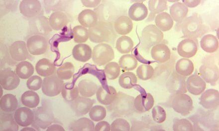 Rolul antioxidanților ca terapie adjuvantă în Boala Chagas