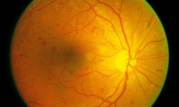Diagnosticarea retinopatiei diabetice cu ajutorul algoritmilor AI