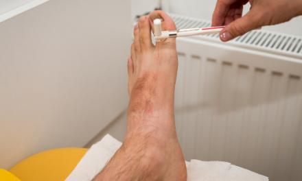 Persoanele cu diabet se tem mai mult de ulcerații și amputații asociate piciorului diabetic decat de infectarea cu noul coronavirus